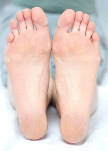picture of the bottom of the feet