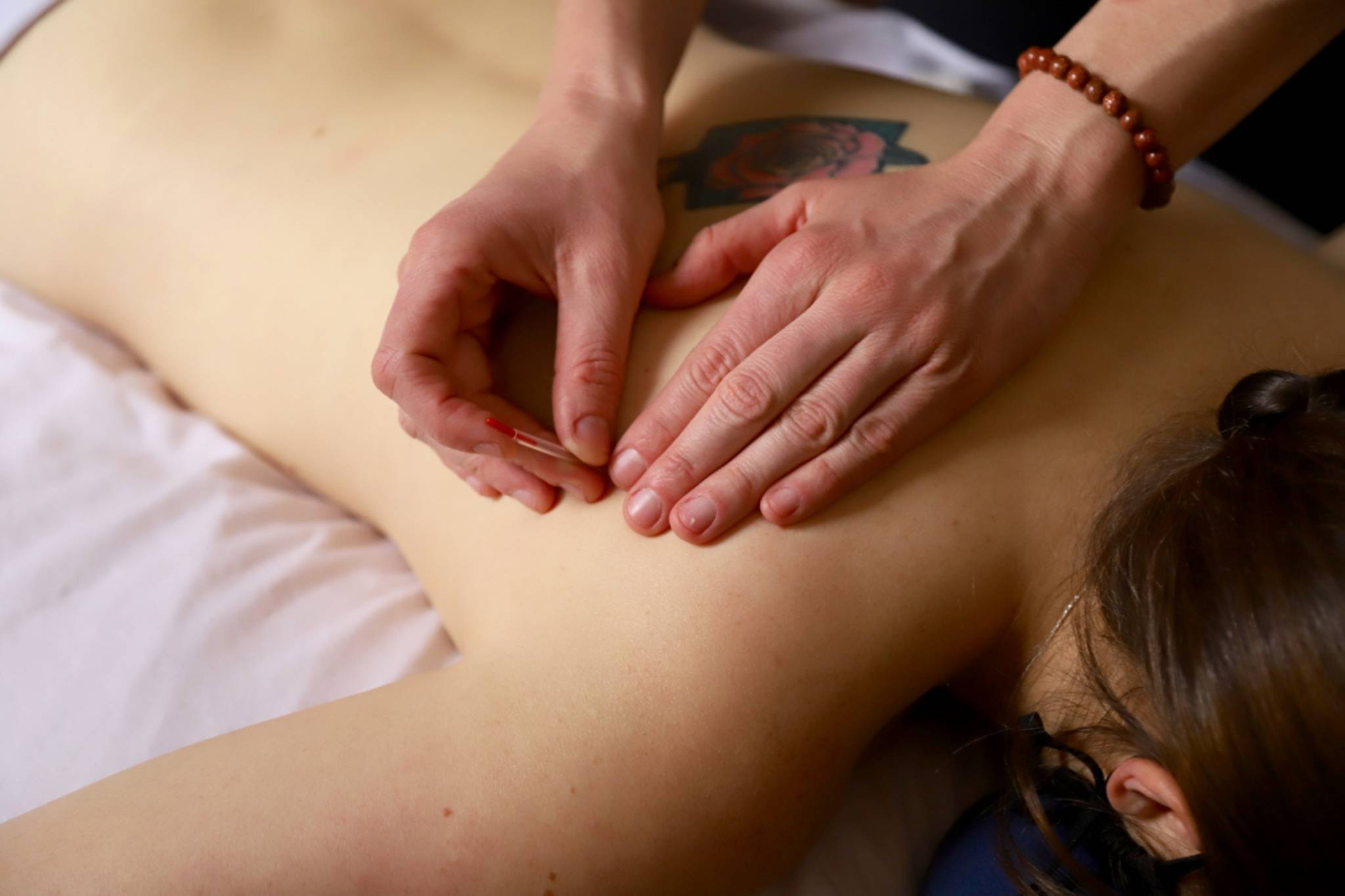 girl getting acupuncture in back