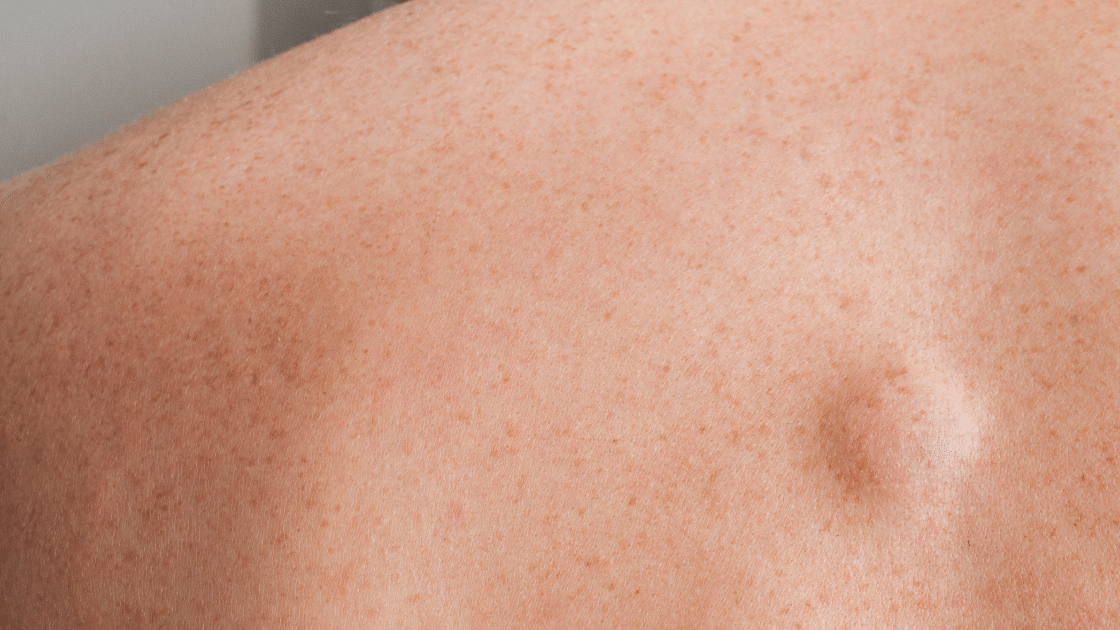 Lipoma on person's back